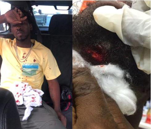 Singer, Orezi Survives Car Crash On Third Mainaland Bridge, Suffers 'Broken Jaw' 3